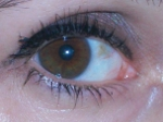 Laura L C Wlikinsonone eye